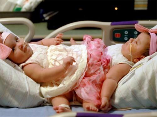 Операция по разделению сиамских близнецов длилась 15 часов