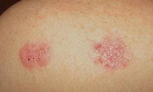 Рак кожи можно будет унюхать