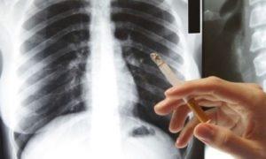 Заядлые курильщики годятся в доноры легких