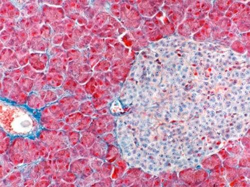 Из стволовых клеток пациентов с диабетом создали бета-клетки