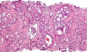 Вакцина против рака предстательной железы