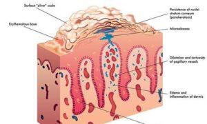 Новый препарат помог пациентам с псориазом