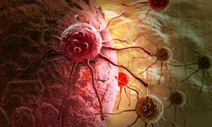 Кальций способствует профилактике онкологических заболеваний
