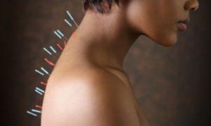 Лечение иглоукалыванием: советы