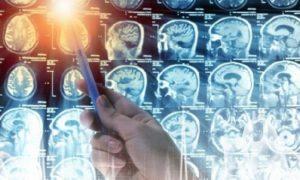 Можно доучиться до… рака мозга