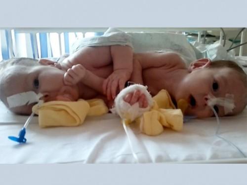 В Москве прооперировали сиамских близнецов с общими желчными путями и кишечником