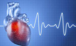 Роль мерцательной аритмии как фактора ухудшения прогноза у жертв ДТП
