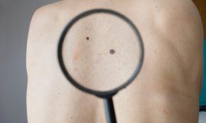 Рак кожи – болезнь белых богатых людей