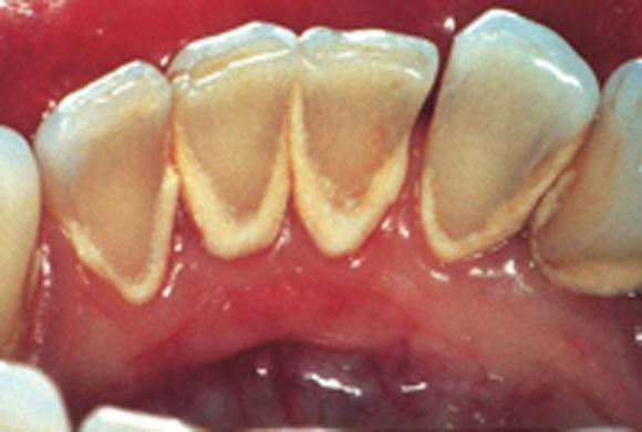 Зубной налет от нового прибора не спрячется