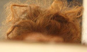 Скрытый «ген рыжих волос» повышает риск рака кожи