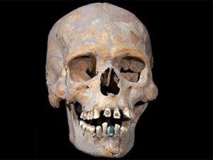 В Мексике археологи нашли скелет с каменным протезом зуба