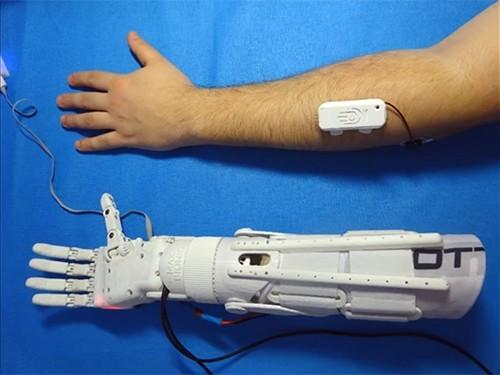 Инженер из Норильска займется производством дешевых бионических протезов