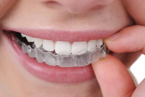 Основные способы выравнивания зубов