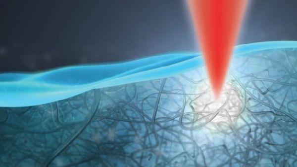 Физики снабдили офтальмологов уникальным устройством