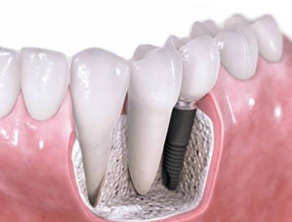 Имплантация зубов как метод обретения голливудской улыбки