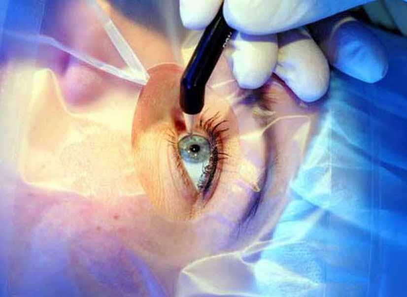 Лазер поможет избежать пересадки роговицы