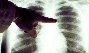 Продукты, содержащие фосфаты, способствуют развитию рака легких