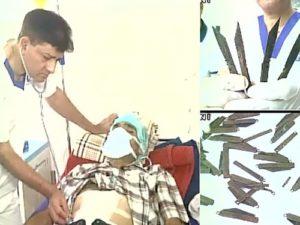 Врачи извлекли из желудка пациента 40 ножей