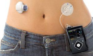 В США одобрена к использованию искусственная поджелудочная железа