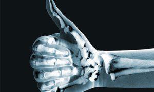 Кости напечатают на 3D-принтере