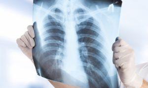 Смоляне стали меньше болеть туберкулезом