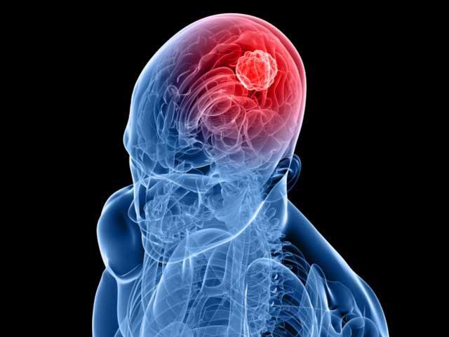 Новый метод поможет победить рак мозга