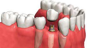 Имплантация зубов в центре «iStomatolog»