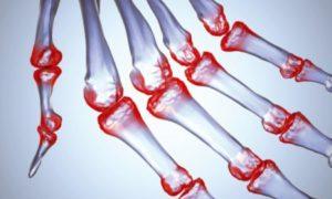 На рынке появится тест для ранней диагностики артрита