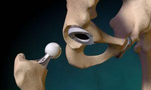 Виды лечения коленного сустава и показания к эндопротезированию