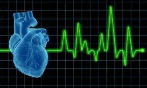St. Jude Medical отзывает имплантируемые дефибрилляторы из-за смерти двух пациентов
