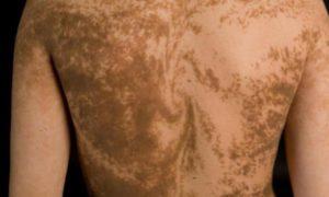 Наша кожа покрыта невидимыми полосами