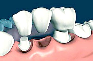 Зубные коронки: особенности установки