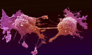 Онкология: механизм возникновения