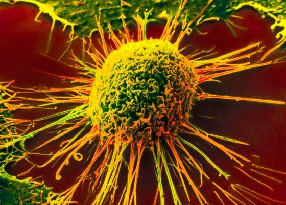 Ученые выяснили, что мешает химиотерапии победить рак