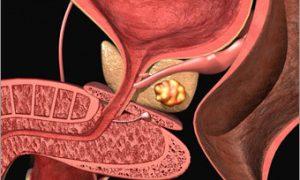 Ученые из Великобритании разработали пластырь для лечения рака простаты