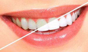 Отбеливание зубов: доступные способы