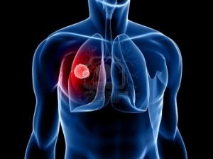 В Китае испытывают генетическую терапию в лечении рака легких