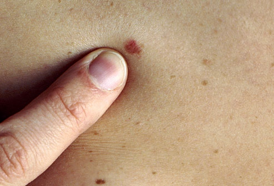 Создан тест для ранней диагностики меланомы
