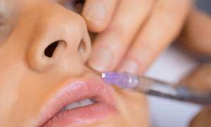 Увеличение губ. Пластическая хирургия или контурная пластика?