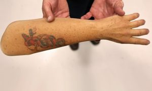 Смогут ли ученые выращивать людям новые руки и ноги?