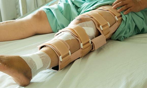 Инъекции клеток костной ткани ускоряют заживление переломов