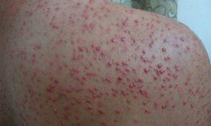 Угри: как ухаживать за кожей?