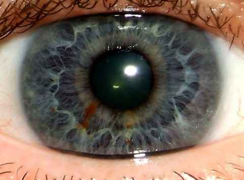 В 2017 году в России стартуют клинические исследования искусственной сетчатки глаза