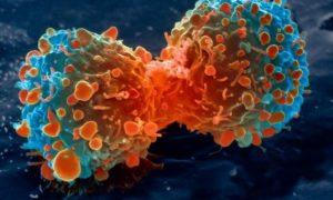 Ученые разработали дешевый способ диагностики рака