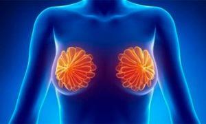 6 продуктов, которые способны предотвратить рак молочной железы