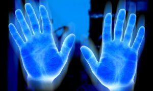 Ультрафиолетовые фотографии помогли оценить риск рака кожи у детей