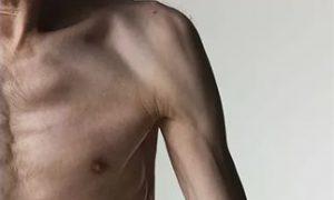 В США зарегистрирован первый кортикостероид для лечения мышечной дистрофии