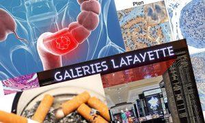 Ученые нашли еще одну причину рака легких и простаты