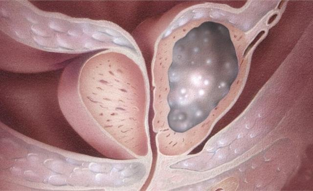 Ученые обнаружили новый тип рака простаты