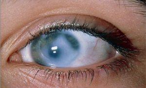 Генетический подход может облегчить диагностику и лечение глаукомы